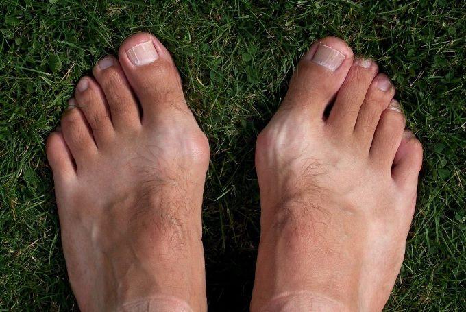 Косточки на ногах. Причины возникновения, лечение